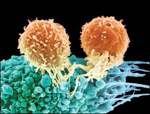 Новая технология лечения позволяет «научить» иммунные Т-клетки атаковать клетки опухоли.