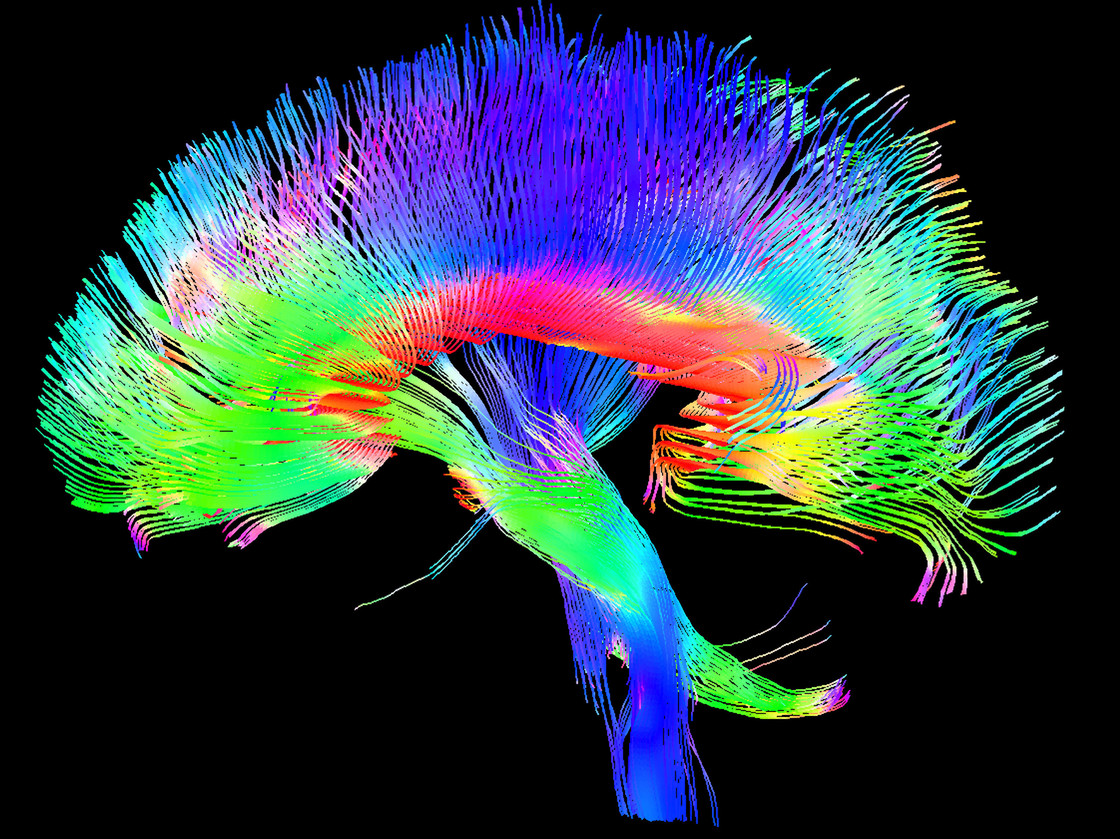 Мозг человека— одна из самых сложных структур, существующих во Вселенной.