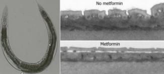 Метформин икруглые черви