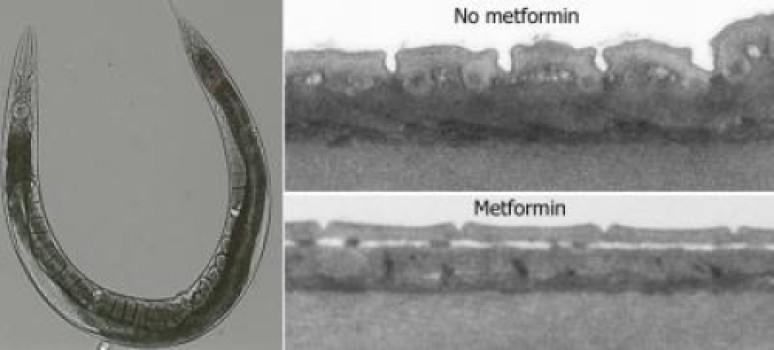 Круглые черви, получавшие метформин, показали замедление процессов, сопровождающих старение.