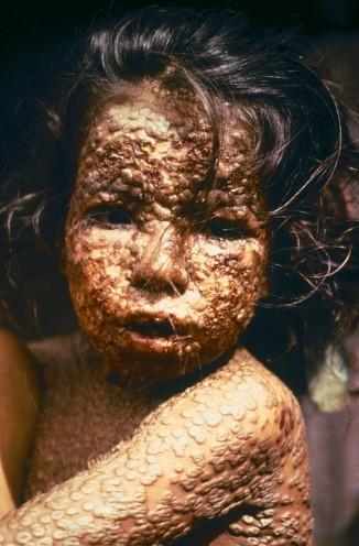 Девочка из Бангладеш, больная натуральной оспой (1973 год).
