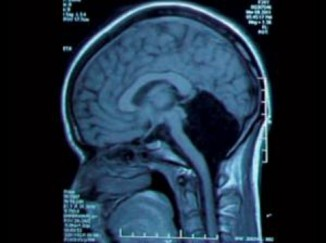 Результаты сканирования головного мозга пациентки. Наместе, где должен быть мозжечок, видна «чёрная дыра».