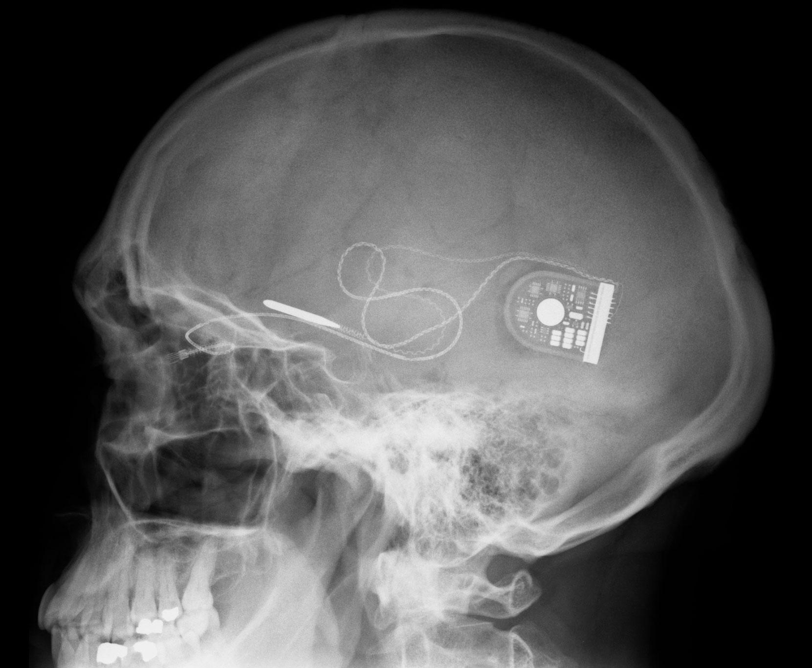 Современный имплантат сетчатки вместе сконтроллером иэлементом питания. Будущие имплантаты будут существенно меньших размеров.