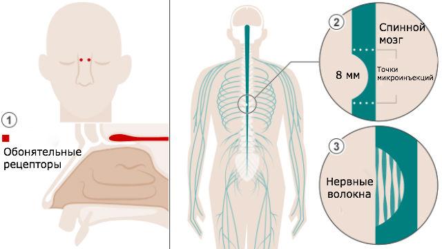 Схема лечения позвоночника сиспользованием глиальных клеток обонятельной выстилки носа.