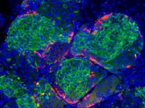 Инсулин (зеленый), вырабатываемый новыми бета-клетками вподжелудочной железе мыши. Изображение авторов.