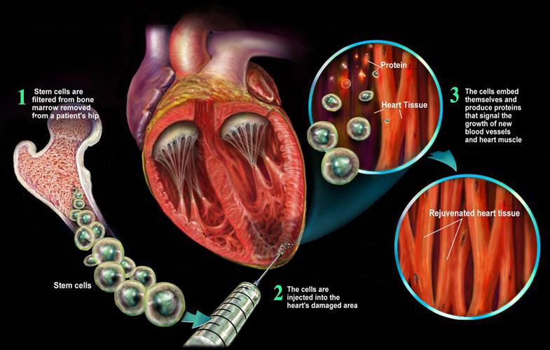 Клеточная терапия при инфаркте.