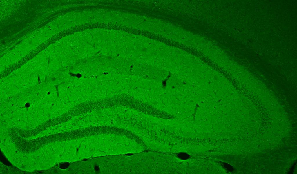 Гиппокамп мыши