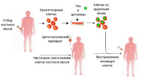 Схема генной терапии редких заболеваний. Упациента необходимо частично удалить клетки костного мозга иввести его же клетки, содержащие здоровый ген. Они начинают делиться ипроизводить белковый продукт, дефект которого приводил кзаболеванию.