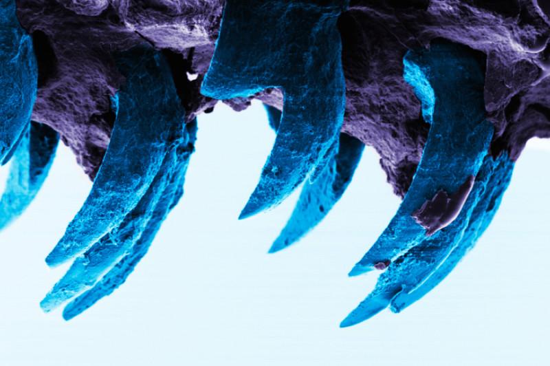 Изображение зубов моллюска, полученное спомощью электронного микроскопа.