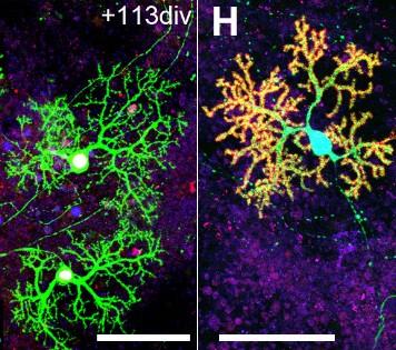 Из стволовых клеток выращены функционирующие мозговые структуры