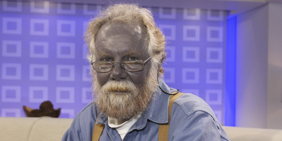 Один из побочных эффектов употребления коллоидного серебра— аргирия, посинение кожных покровов. Аргирия остаётся навсю жизнь, даже если приём препарата прекращён. Нафото— Пол Карасон, принимавший коллоидное серебро втечение 15 лет для лечения дерматита. Умер ввозрасте 62 лет.