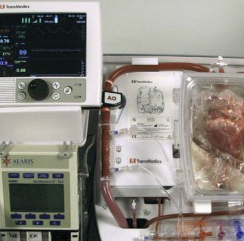 Умершее, азатем реанимированное сердце человека пересажено вЕвропе