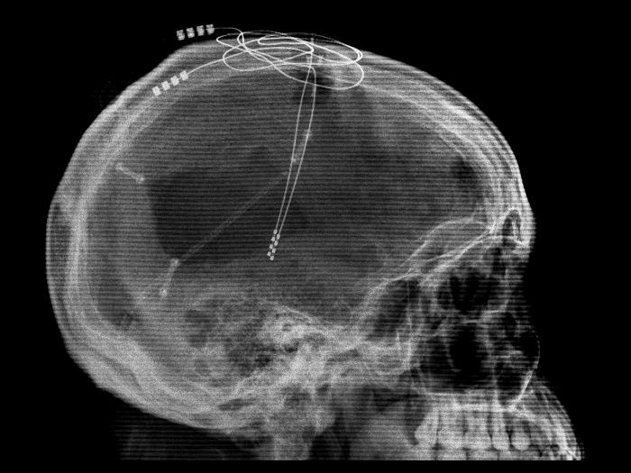 Глубокая стимуляция мозга. Электроды вводятся вголову идостигают глубоких структур.