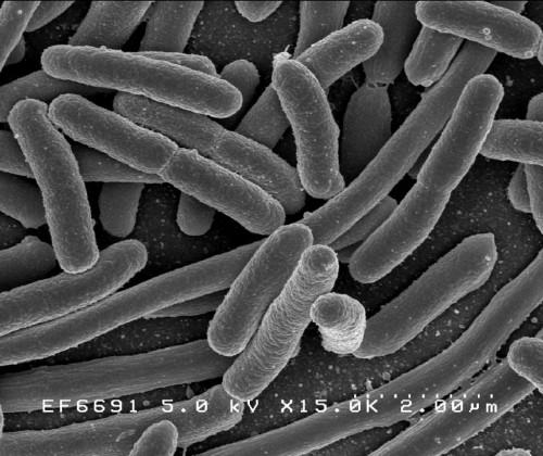 Кишечная палочка. Изображение получено при помощи электронного микроскопа.