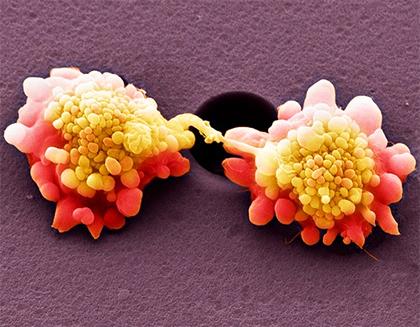 Клетки HeLa под сканирующим микроскопом впсевдоцветах. Иллюстрация: Steve Gschmeissner / Science Photo Library