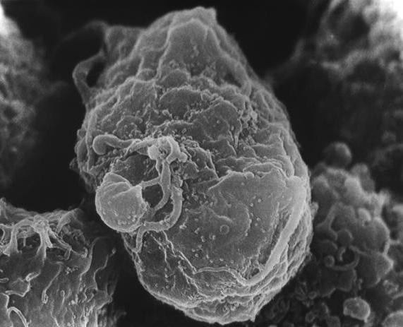 Заражённый T-лимфоцит