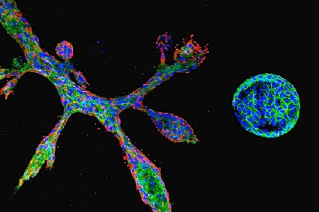 Клетки молочной железы вчашке Петри. Фото: Haruko Miura.