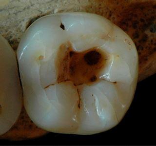 Стоматология 14 тысяч лет тому назад