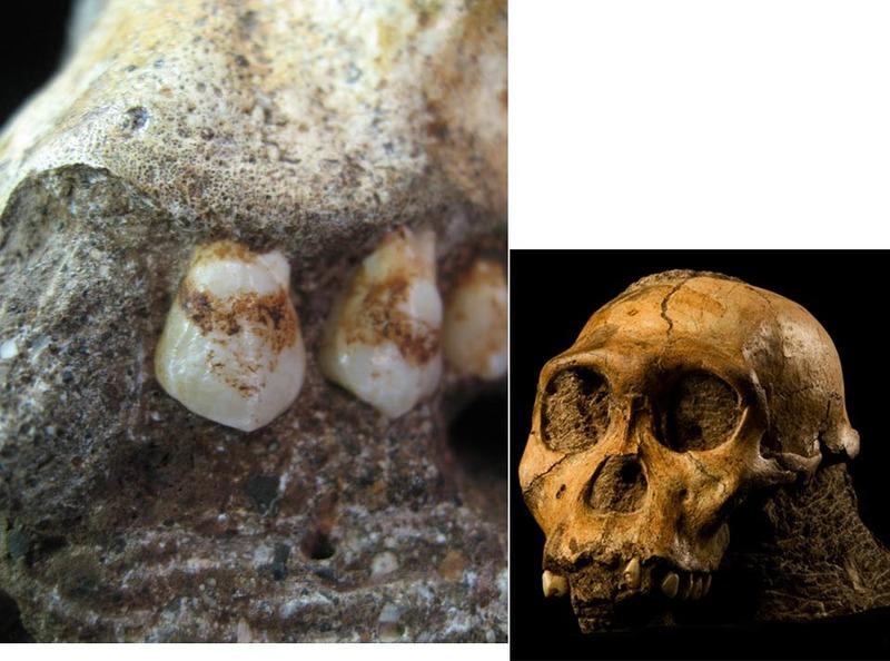 Зубы австралопитека седибы. Виден зубной камень. Источник: http://news.sciencemag.org