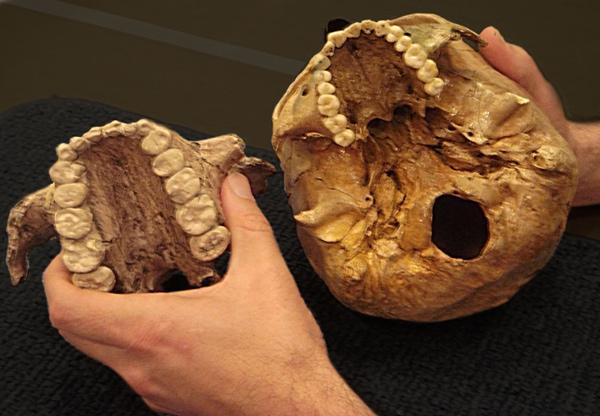 Слева— верхняя челюсть парантропа Бойса, справа— для сравнения, верхняя челюсть современного человека. Источник: Melissa Lutz Blouin (University of Arkansas) http://www.newscientist.com/.