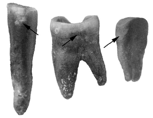 Зубы неандертальца Шанидар 3.