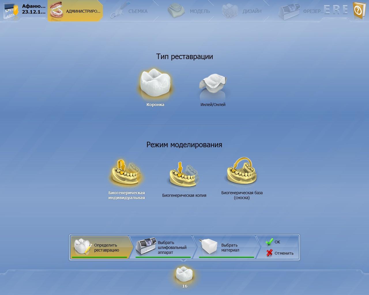 Интерфейс программного обеспечения CEREC. После снятия оптических слепков врач создаёт 3D-модель зубного протеза, которую затем вытачивает станок.