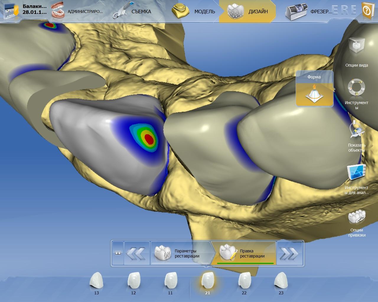 Интерфейс программного обеспечения CEREC. 3D-модель. Разными цветами обозначены места иплотность контактов. Красная точка означает слишком плотный контакт ссоседним зубом.
