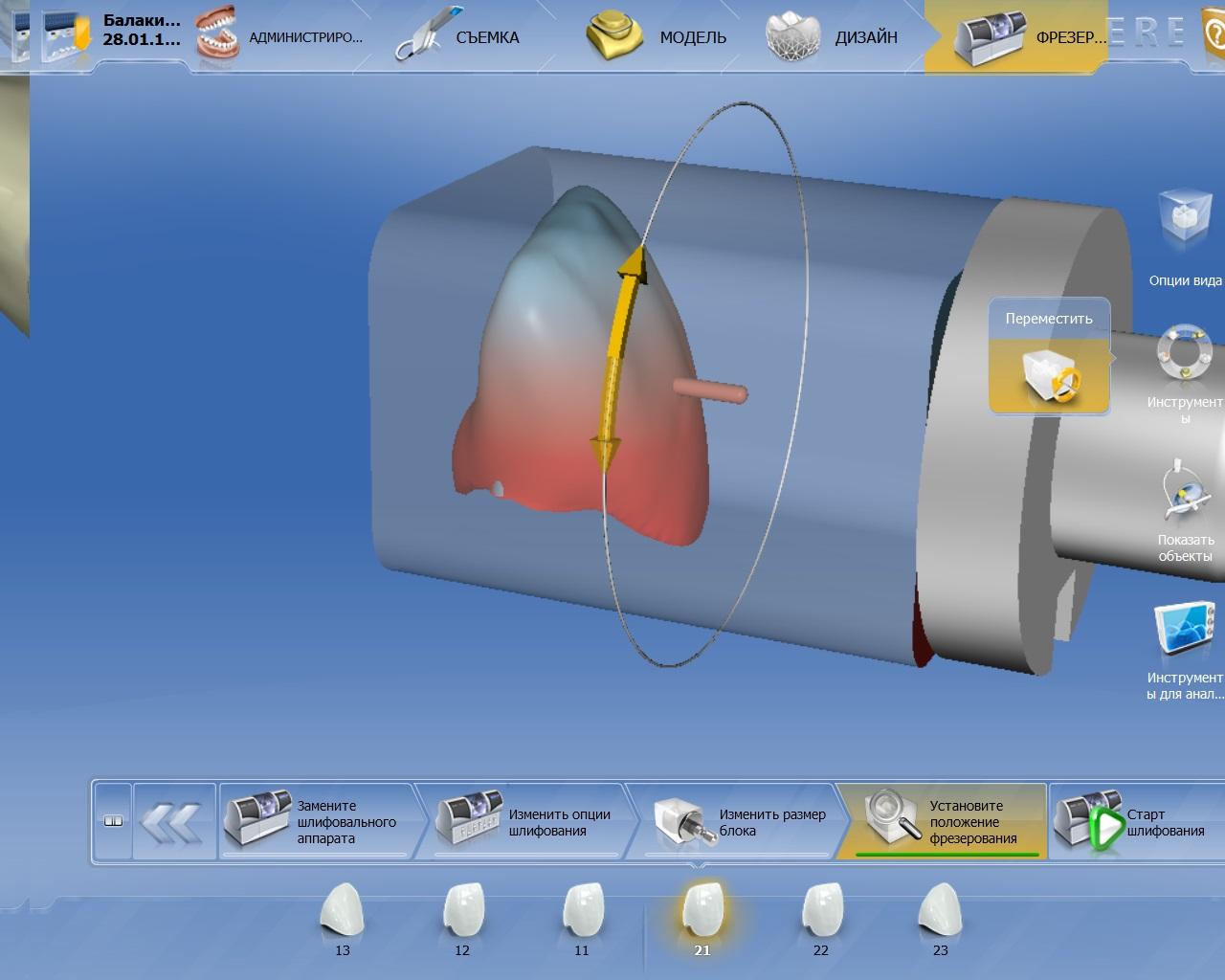 Интерфейс программного обеспечения CEREC. При создании трёхмерной модели коронки можно посмотреть, как она будет располагаться вшлифовальном аппарате.