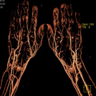 Рентгеновская компьютерная томография опасна для ДНК больного человека