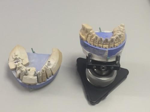 Для того чтобы изготовить зубные протезы по технологии CAD/CAM, необходимо снять оптические снимки зубов пациента. Сканировать зубы можно вполости рта пациента, но работать удобнее сгипсовыми моделями: втаком случае немешают язык ислюна.