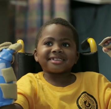 Врачи пересадили кисти обеих рук восьмилетнему мальчику