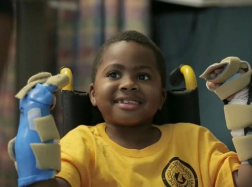 Ребёнок признался, что вновь чувствовать руки ему поначалу было «немного странно», но затем ощущения ему понравились.
