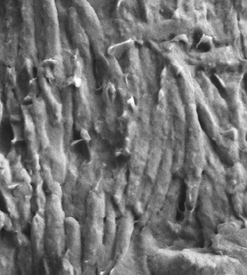 Меланосомы под микроскопом.