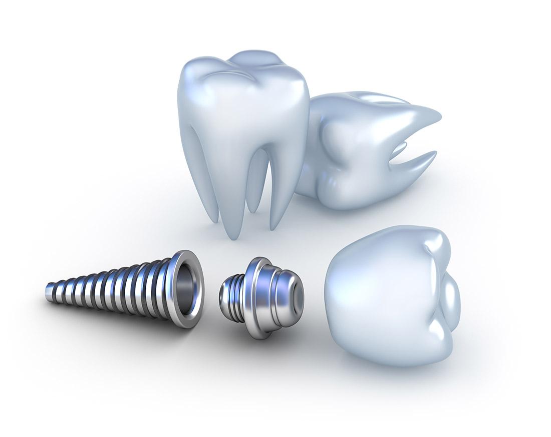 Зубной имплантат исупраструктура