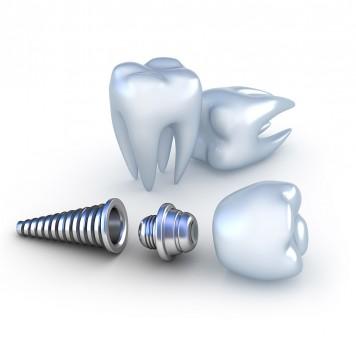 О современных технологиях зубного протезирования