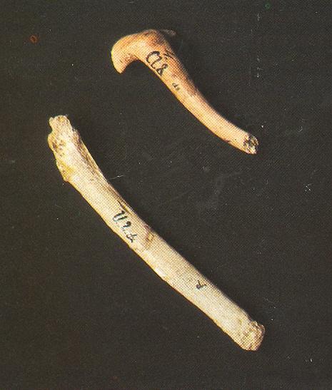 Сверху— сросшаяся  ключица, снизу— локтевая кость Крапина 180, со следами предположительной ампутации нижнего конца. Источник: http://www.izlog.info/tmp/hcjz/clanak.php?id=14422