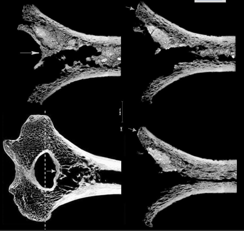 Сравнение 3-х микротомографий плечевой кости из Погребения 416, Бютье-Буланкур, смикротомографией плечевой современного человека. Источник: Buquet-Marcon 2007, p. 15, p. 17.