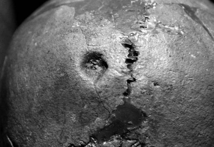 Мурзак-Коба. Предполагаемая символическая трепанация начерепе женщины. Источник: Медникова 2015, с. 57.