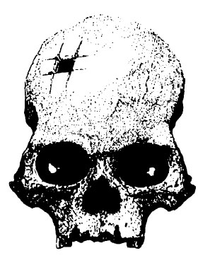 Инкский череп из Куско, скоторого началось исследование трепанаций древности. Источник: Медникова 2004, с. 8.