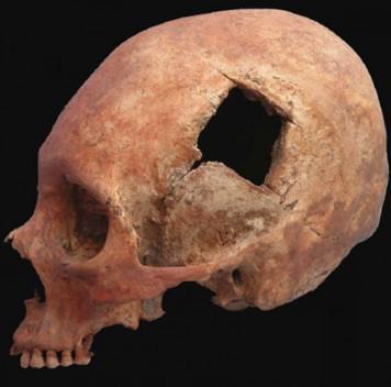 Homo medicus. Гиппократы каменного века. ЧастьII