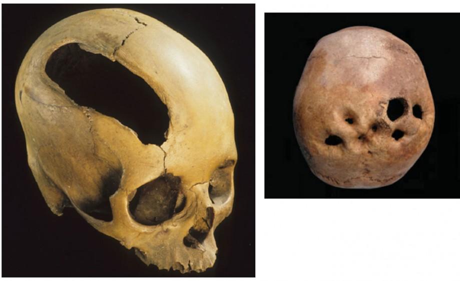 Трепанированный череп из Перу. Фото предоставлено С.Дробышевским