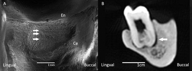Челюсть из Дманиси: D2735 пользовался зубочисткой. Слева— горизонтальные бороздки направом нижнем первом моляре. Справа— компьютерная томограмма: зазор между корнем зуба иальвеолой (периодонтит). Источник: Margvelashvili 2013