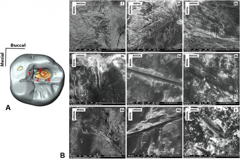 Царапины навнутренней поверхности кариесной полости зуба из Венето Доломитес. Сканирующая электронная микроскопия. Источник: Oxilia 2015.