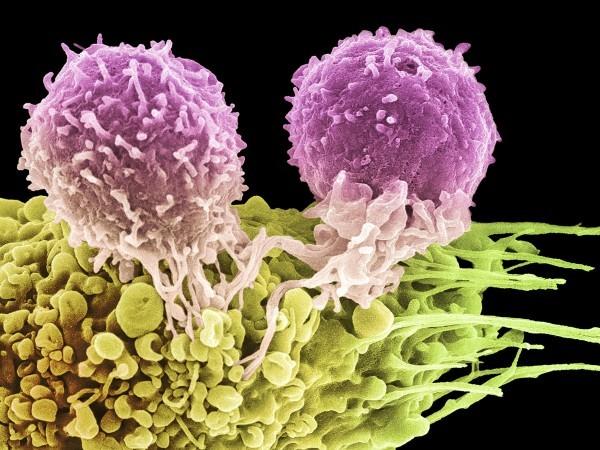 Т-клетки атакуют опухолевую клетку. Фотография из журнала Science