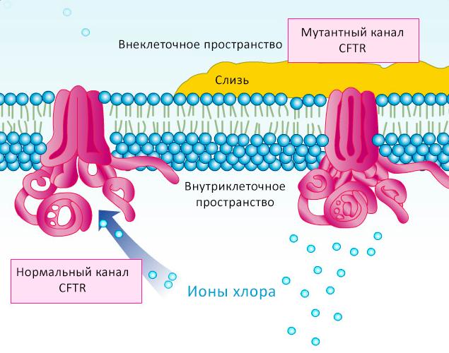 Муковисцидоз возникает из-за мутации вхлорном канале CFTR (справа), что приводит кнакоплению вязкой слизи снаружной стороны клеток инарушениям вработе лёгких, кишечника идругих органов. Новые препараты нормализуют работу канала (слева) так, что он выкачивает достаточное количество ионов хлора наружу клетки