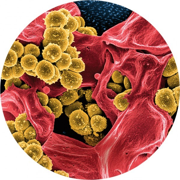 Резистентный кантибиотикам стафилококк иклетка человека