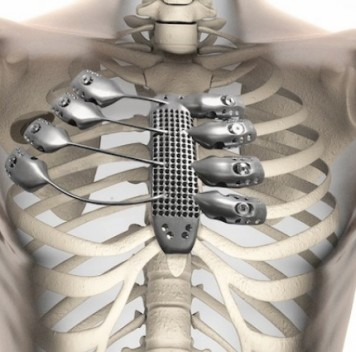 Протез грудной клетки по индивидуальному проекту