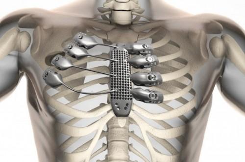 Протез грудины ирёбер втеле пациента.