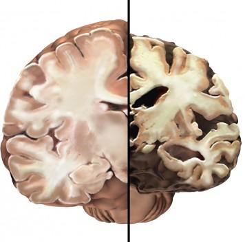 Впервые обнаружены случаи заражения болезнью Альцгеймера