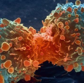 Рост раковых клеток удалось обратить спомощью микроРНК
